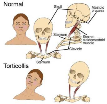 Torticollis: Causes, Symptoms, Types & Treatment » How To Relief