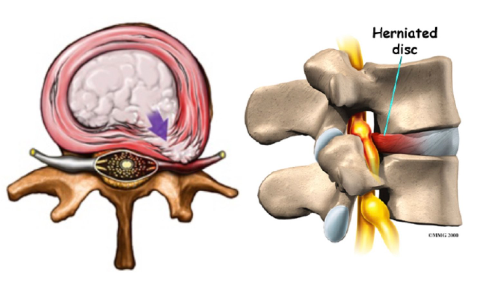 Can a Disc Herniation Heal? — Chiropractor Rochester New York