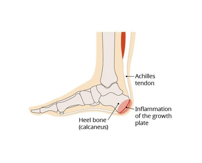 Heel Pain in Kids – Sever's Disease |