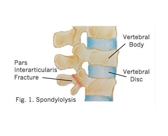 What Are Spondylolysis and Spondylolisthesis? - Rural Physio at ...