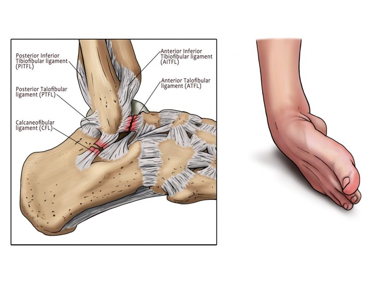 Are You Suffering From A Sprained Ankle? - MyAnkle | Ankle Pain London