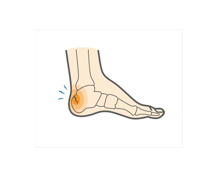 Calcaneal Stress Fracture | Upswing Health